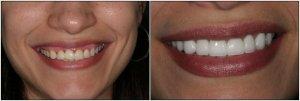 Люминиры или Что надо знать о голливудской улыбке
